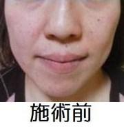 Facial & Body Beauty Service ( Beauty Heaven)